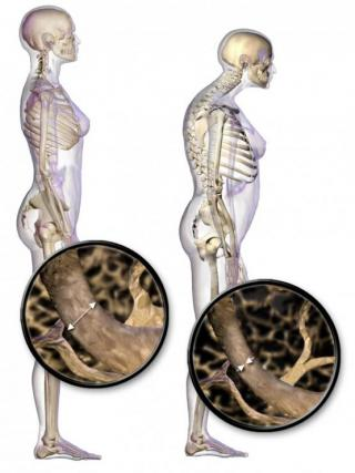 Osteoporosis makes bones increasingly fragile.
